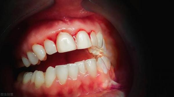 避免牙周病與防癌!醫師:清除口腔壞菌的刷牙法,降低大腸癌機率